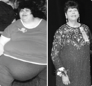 Before and After Photo of TOPS Member who lost 300lbs.
