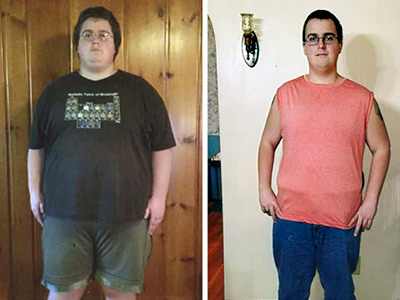 Zachery B. before and after photo